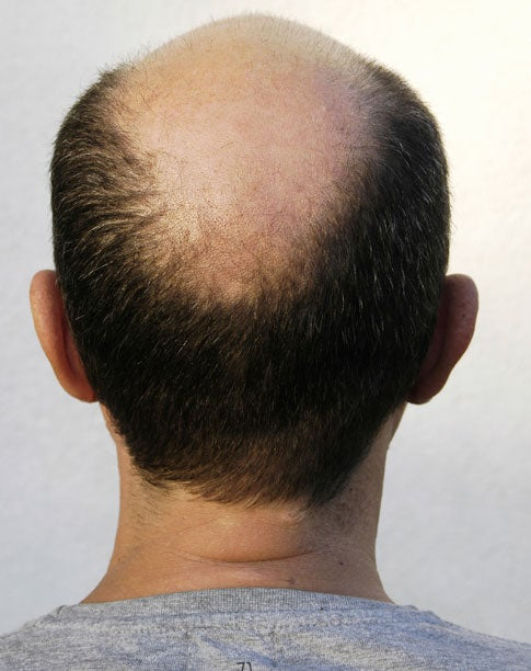 Cloning Hair to Fight Baldness