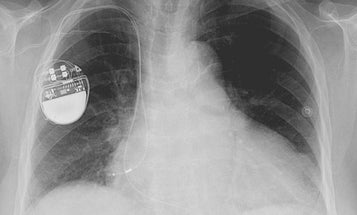 Hackers Could Access Pacemakers From A Distance And Deliver Deadly Shocks
