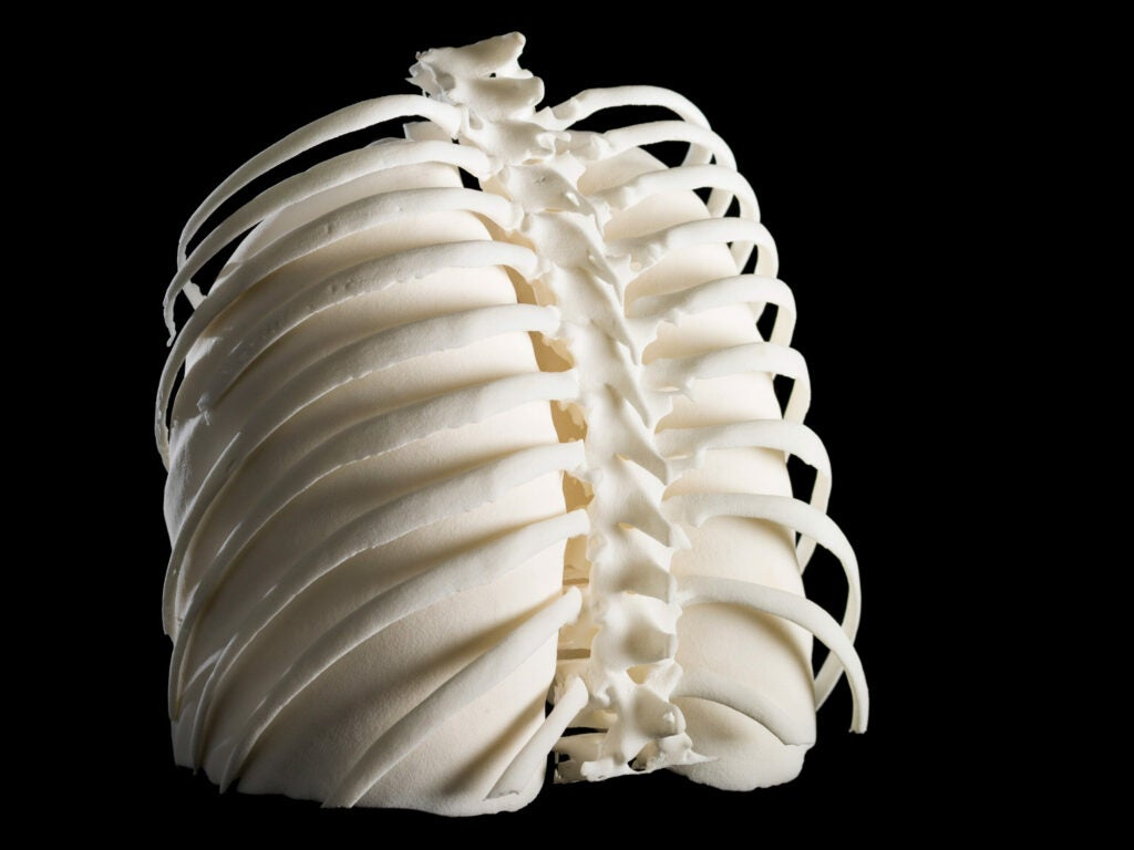httpswww.popsci.comsitespopsci.comfilesimages2015033d-printed-lungs-in-rib-cage.jpg