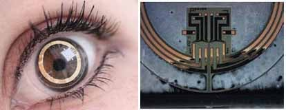 Sensor-Equipped Contact Lens Monitors Glaucoma Symptoms Around the Clock