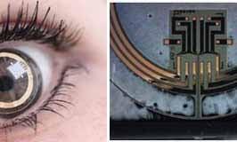 Sensor-Equipped Contact Lens Monitors Glaucoma Symptoms Around the Clock