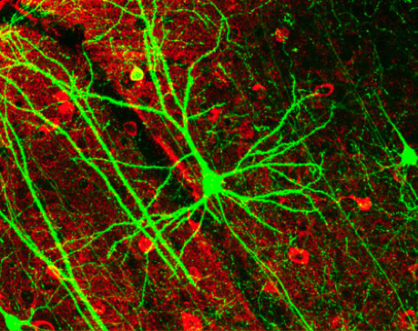 Artificial Neurons Could Replace Some Real Ones In Your Brain