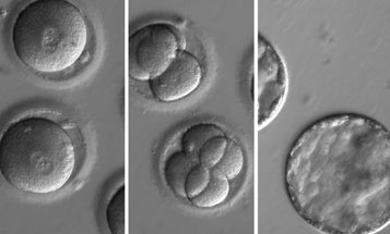 U.S. researchers have used gene editing to combat heart disease in human embryos