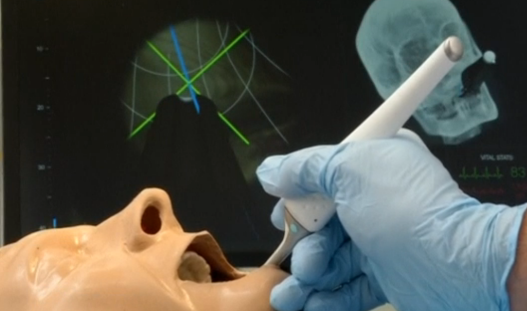 Handheld Device For Surgeons Could Turn Off Pain
