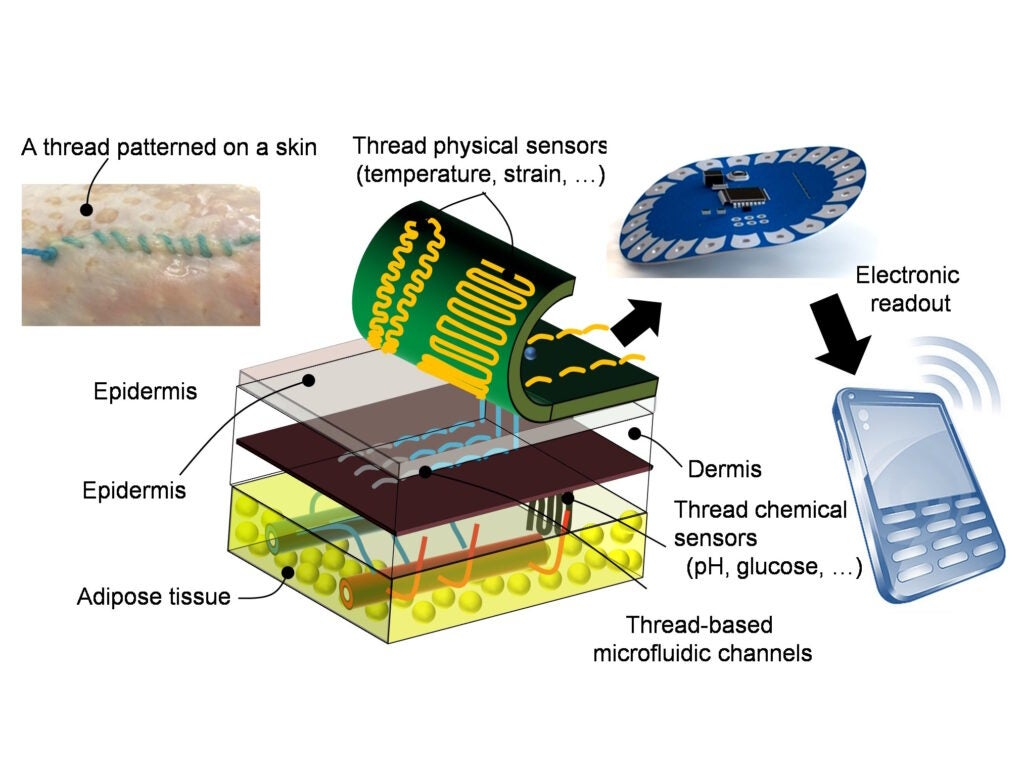 Diagram showing how smart threads could be embedded in skin.
