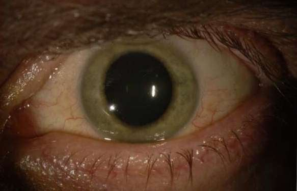 Ebola Changed This Doctor's Eye Color