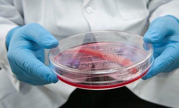 World's First Tissue-Engineered Urethras Deemed a Success