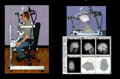 Magnetic Brain Stimulation Speeds Up Motor Learning
