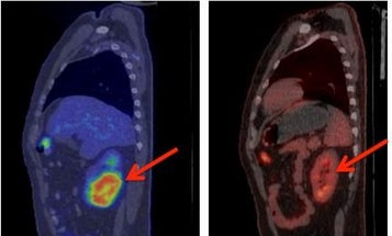 Here's Why Scientists Are Shocked By The Results Of This Cancer Treatment Trial