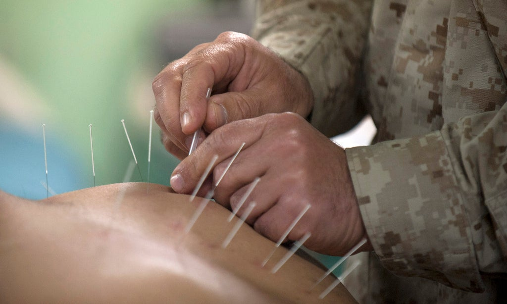 Acupuncture May Work Like Drugs To Relieve Stress
