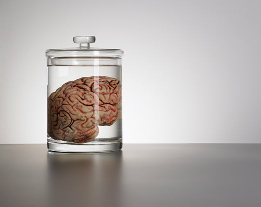 FYI: How Long Can a Brain Live in a Dish?