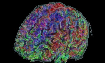 Computer Brain Surgery Simulation Is Genuinely Gelatinous