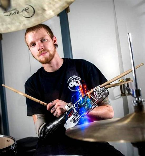 Prosthetic Robot Arm Gives Drummer A Third Stick