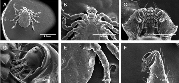 Video: The First Living Animal Ever Imaged With a Scanning Electron Microscope