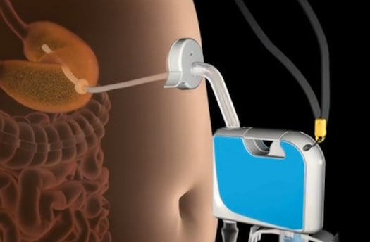 Segway Inventor Patents A Gadget That Sucks Food Directly Out Through A Port In Your Stomach