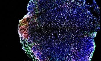 Zika Found To Cause Birth Defects In Newborn Mice