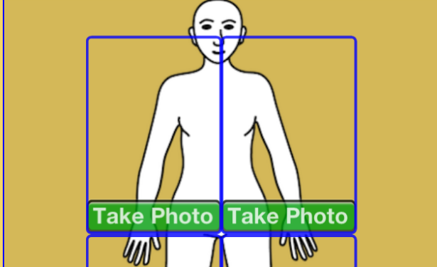 Screen Yourself for Skin Cancer at Home With Your Phone's Camera
