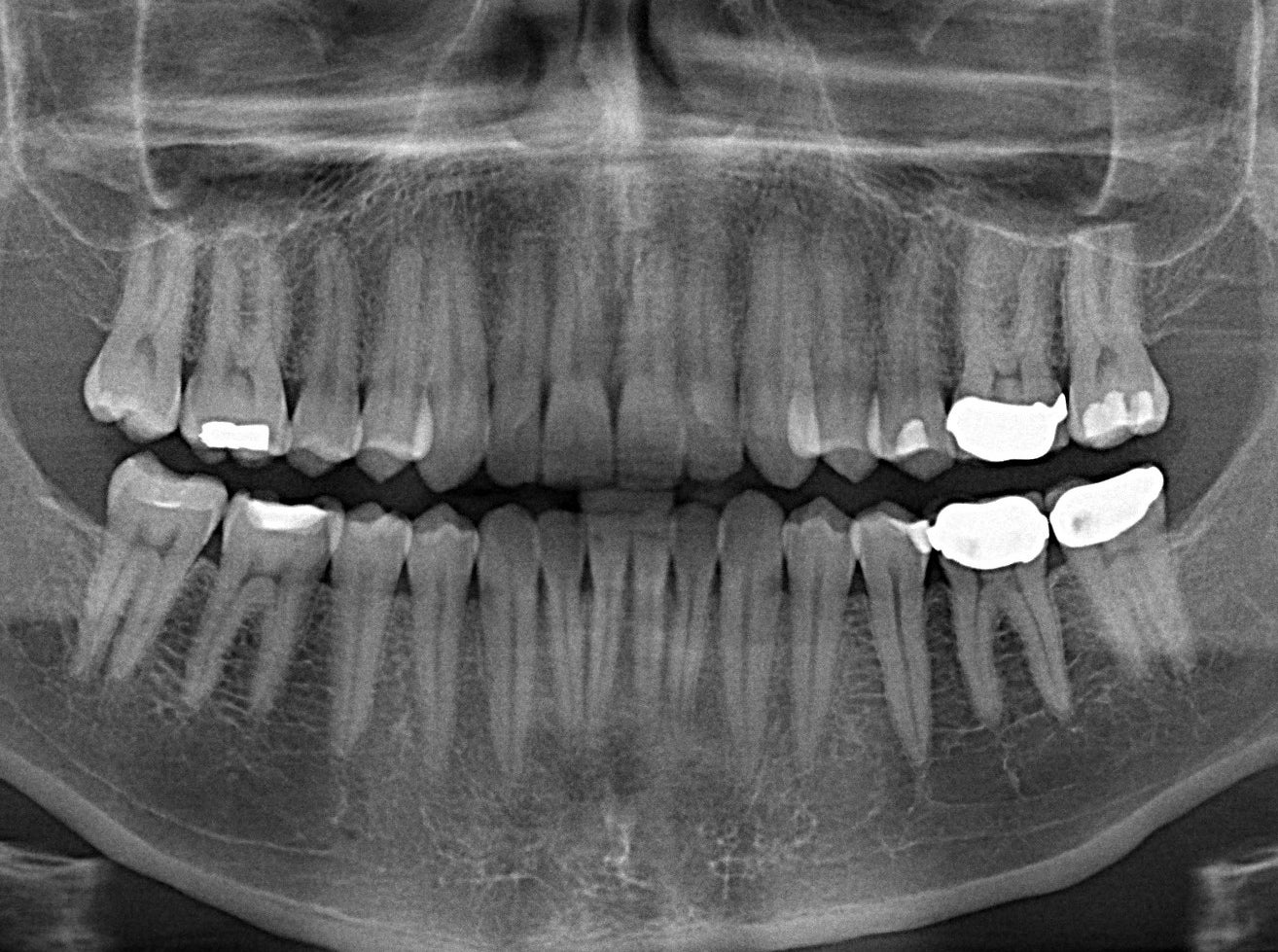 The End Of Root Canals?