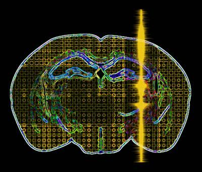 Noninvasive Ultrasound Pulses Could Treat Neuro Disorders, Enhance Cognitive Function