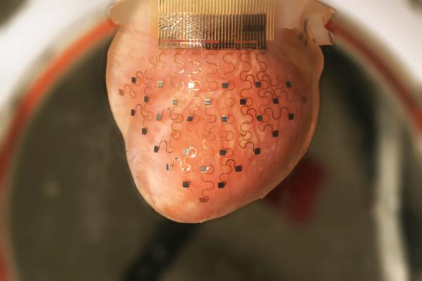 This Pacemaker Membrane Can Keep A Heart Beating Perfectly