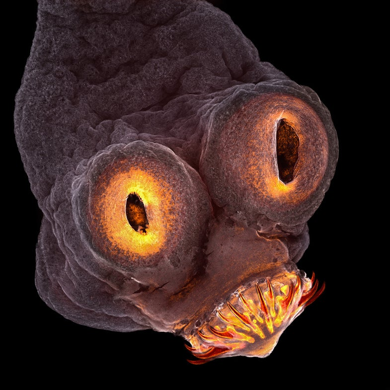 The front end of a tapeworm