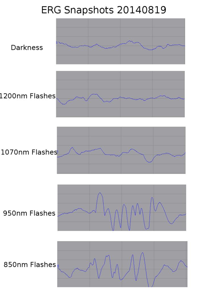charts of ERG response
