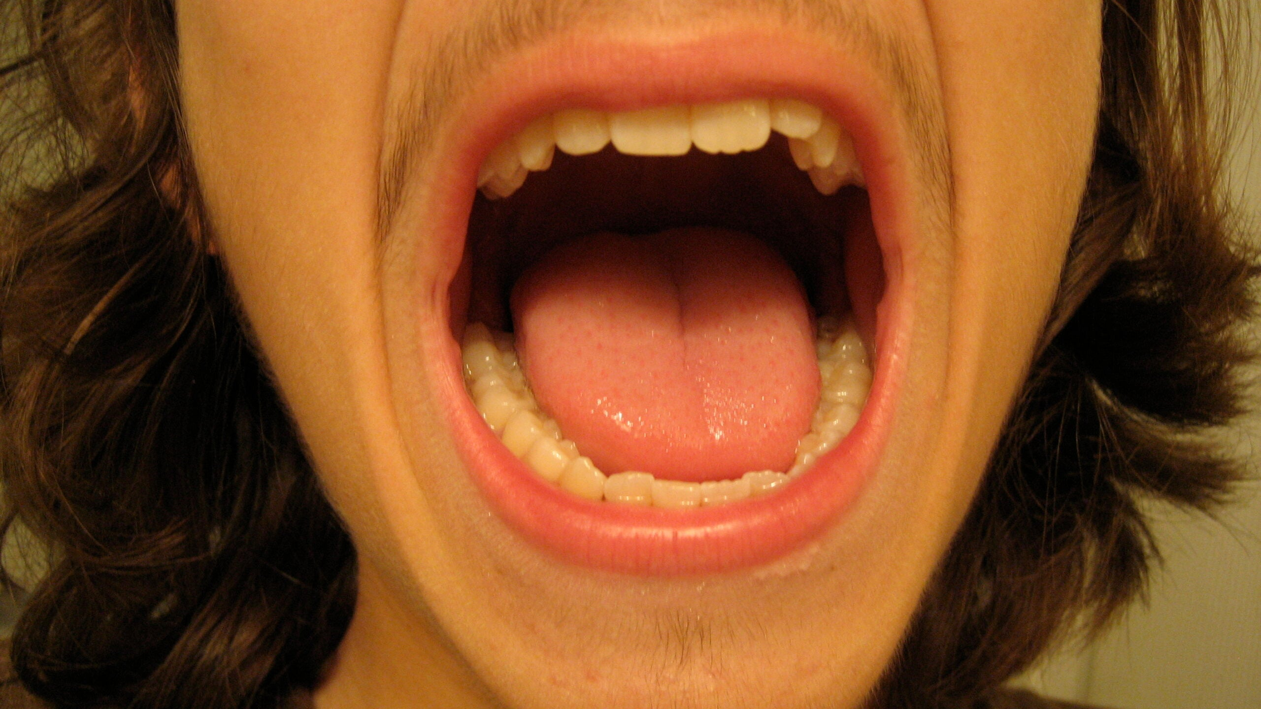 What To Make Of That Saliva Test For Homosexuality