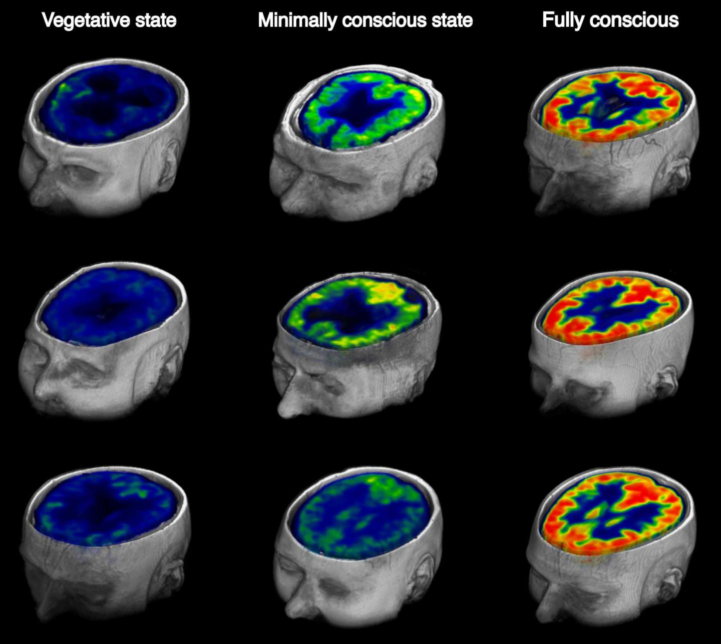 FDG-PET image of healthy and brains of varying consciousness
