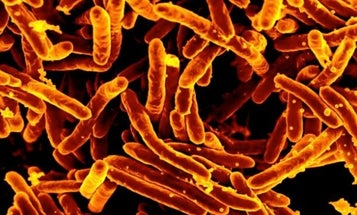 Events In Your Past Determine Which Microbes Live On You