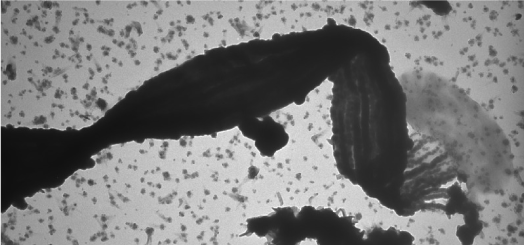 Scientists Teach Bacteria To Eat Electricity