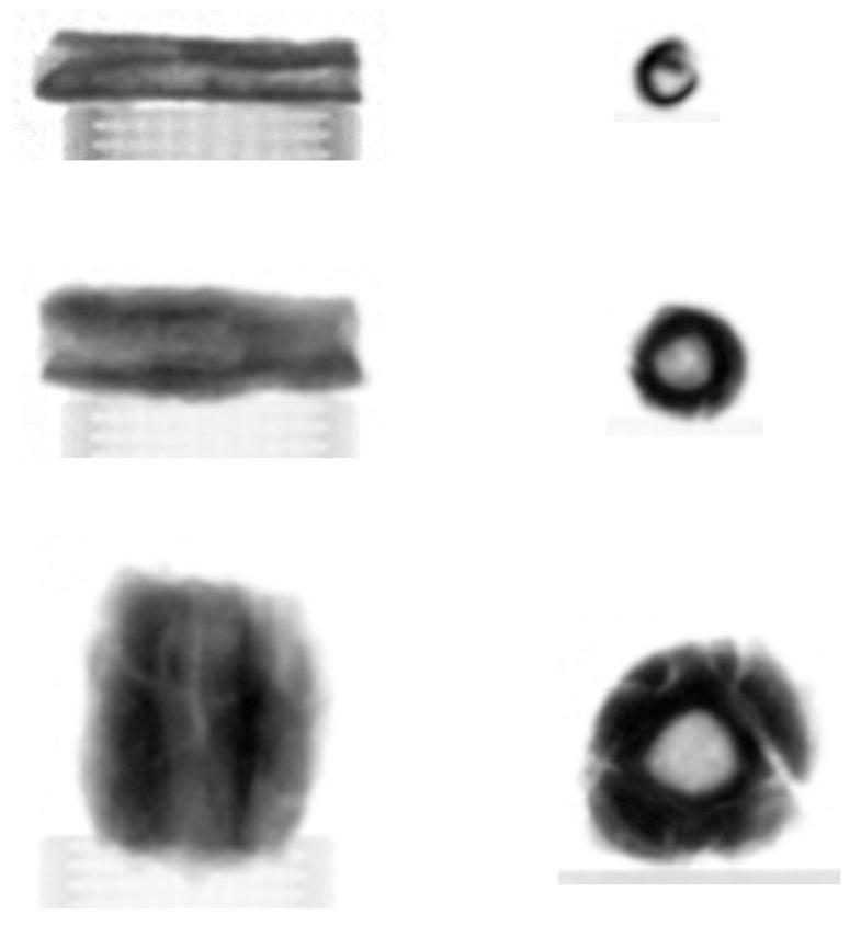 Neutron Radiograph