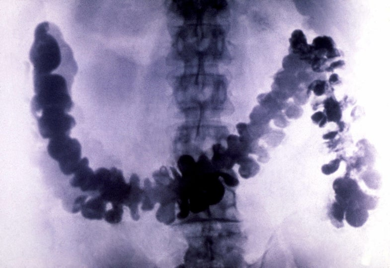 Colon and rectal cancer seem to be on the rise—in millennials