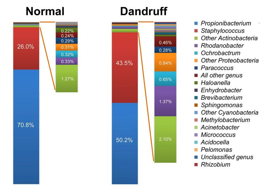 dandruff study chart