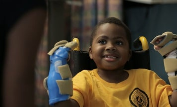 8-Year-Old Boy Receives Double Hand Transplant