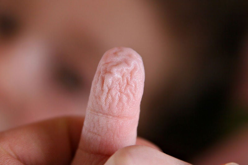 The Mystery of Wrinkly-When-Wet Fingers, Solved