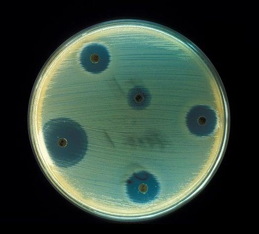 A New Superbacteria, Immune To Most Antibiotics, Found Spreading Fast