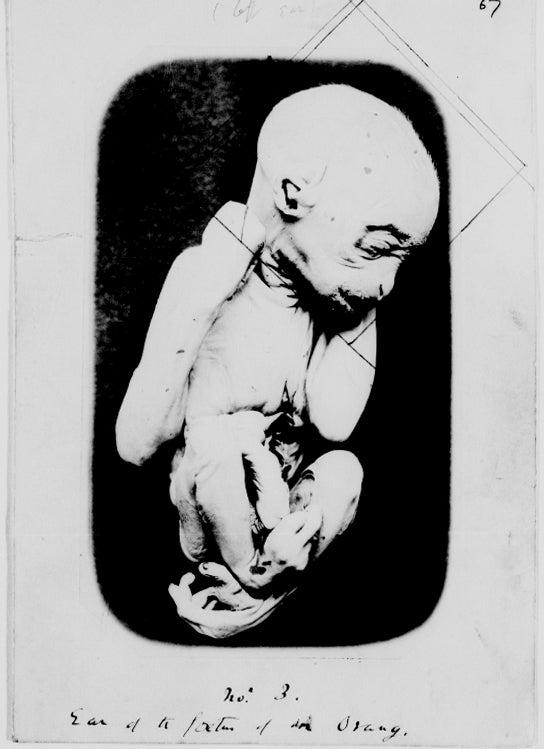 """""""Fetus"""""""