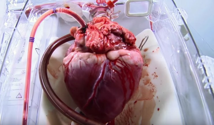 Device Revives Disembodied Hearts That Have Stopped Beating