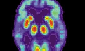 Can You Catch Alzheimer's?