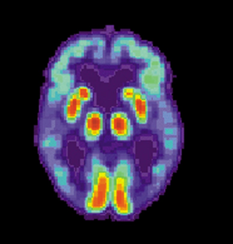 Not Enough Sleep May Help Alzheimer's Take Hold