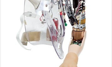 Neuro-Controlled Bionic Arm