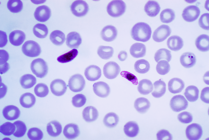 Drug Flags Malaria-Infected Cells For Destruction