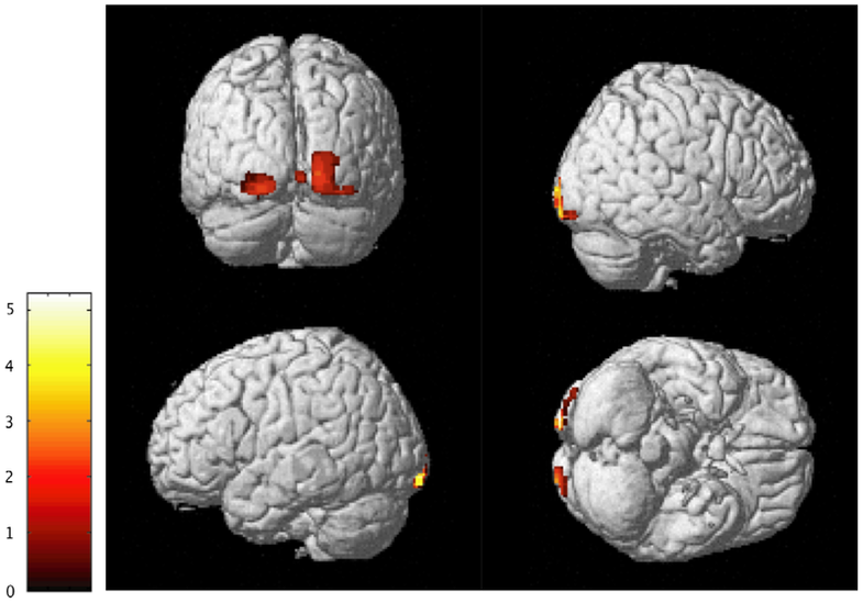 More Empathetic People Have Physically Different Brains