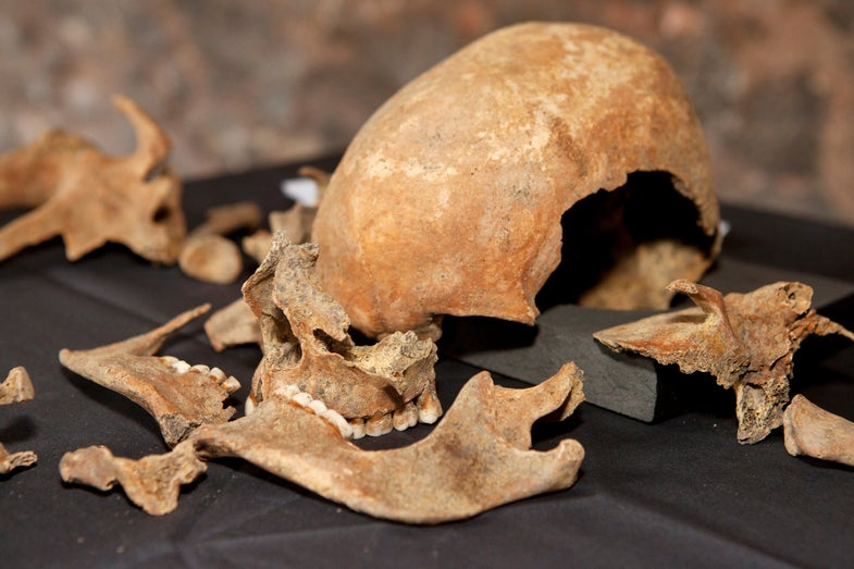 No, Rats Are Not Exonerated From The Black Death