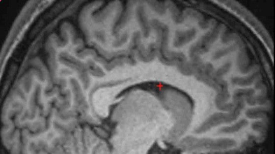 Found: The Particular Brain Fold That Helps People Distinguish Between Imagination and Reality