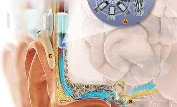 An Artificial Inner Ear To Eliminate Vertigo