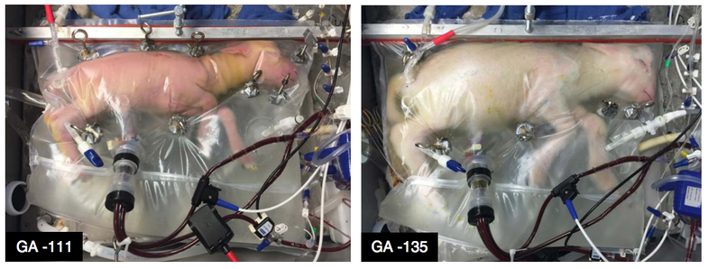 This 'artificial womb' is like science fiction—but uteruses aren't out of a job yet
