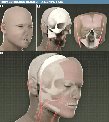 Doctors Perform First-Ever Full Facial Transplant