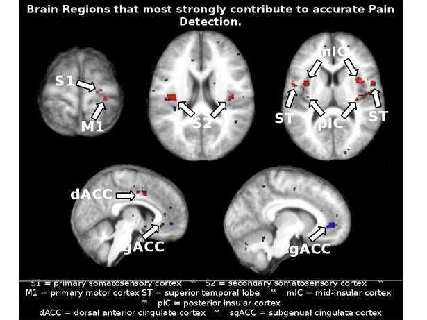 "Brain-Scanning ""Painometer"" Is an Attempt to Measure Pain Objectively"