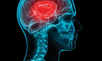 A New Blood Test Could Spot Concussions Within Hours